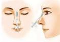 看过玻尿酸隆鼻术后护理方案与适宜人群才能放心做注射隆鼻