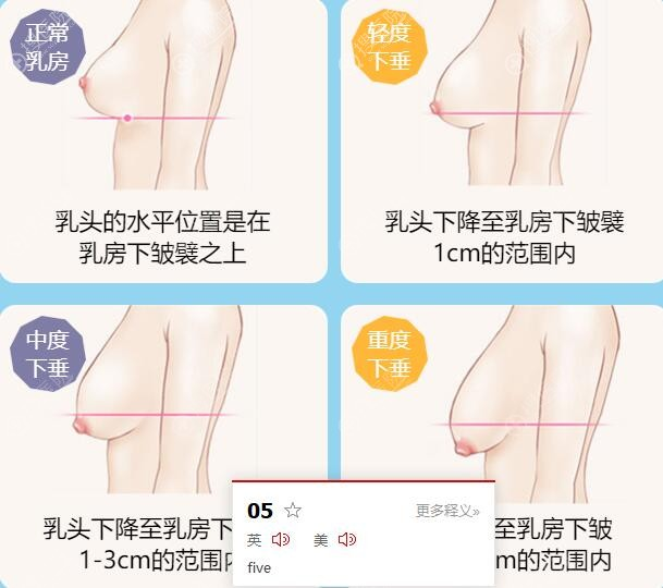 不同程度乳房下垂图解