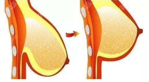 提升乳房前后示意图