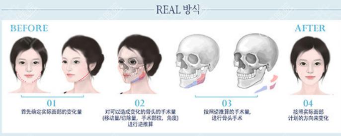 韩国faceline面部轮廓整形方法