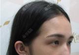 韩国碧夏整形李珉仕给我做的全脸脂肪填充效果朋友们羡慕的不行