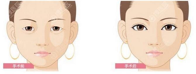 双眼皮术前术后效果图