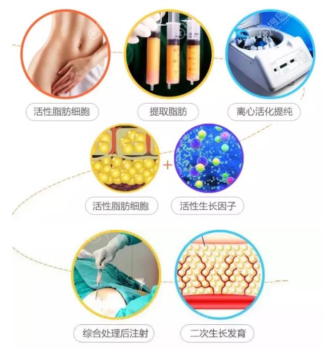 自体脂肪移植过程图