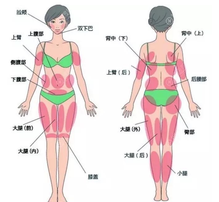 自体脂肪填充与移植部位图解