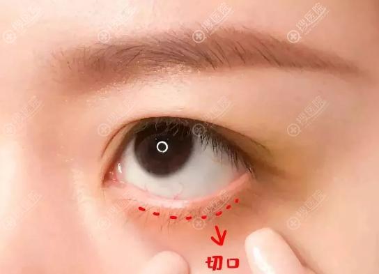 外切去眼袋切口示意图