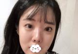 韩国留学生谈找玛博尔徐逸范做隆鼻垫下巴手术的原因及术后效果