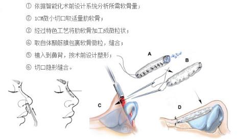 土耳其软糖隆鼻手术方法