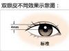 割双眼皮一宽一窄怎么办,做眼部修复手术前如何改善?