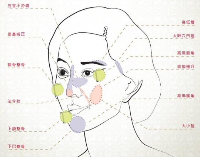 面部整形手术部位示意图