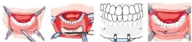 双鄂手术如口腔有切口应保持口腔卫生
