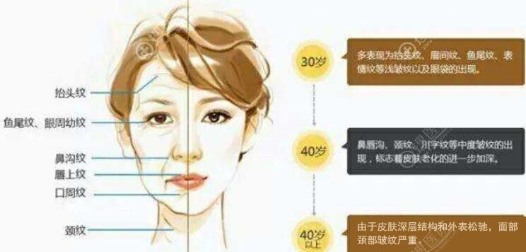 面部年轻化抗衰老年龄与部位分布