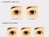 韩国贝缇莱茵整形医院眼底脂肪再分配 眼袋+去黑眼圈价格6009元