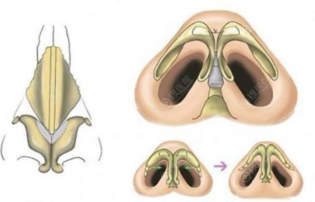 鼻翼缩小手术效果对比图