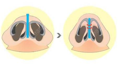 鼻翼缩小前后效果对比图