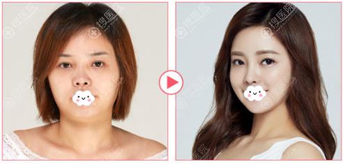 韩国欧佩拉权纯范面部轮廓整形前后对比图