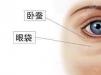 祛泪沟多少钱?脂肪、玻尿酸填充泪沟与眼底脂肪再排列价格不同