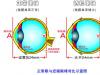 涨知识:专业医生解答做了双眼皮手术还能做近视手术吗?