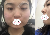 我在韩国GNG做下颌角整形加颧骨内推大家看我现在面部轮廓咋样