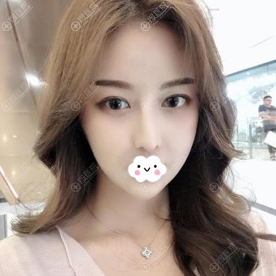 韩国女神V-line瓜子脸手术术后效果