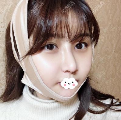 韩国女神权升基瓜子脸手术3天后照片
