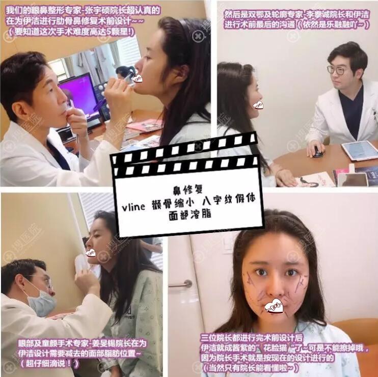 韩国ID整形医院面部轮廓+鼻修复案例图