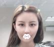 聊聊韩国女神权升基给我做V-line瓜子脸磨骨加下巴整形效果咋样