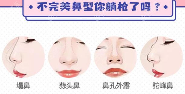 南京华美做鼻子类型