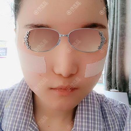北京圣嘉新整形医院张笑天磨骨案例