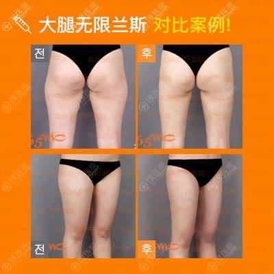 韩国365mc大腿吸脂效果对比