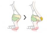 美鼻攻略!隆鼻术后鼻子不好看做鼻小柱延长手术费用与什么有关