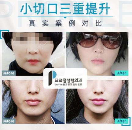 韩国Porfile普罗菲耳小切口三重提升案例