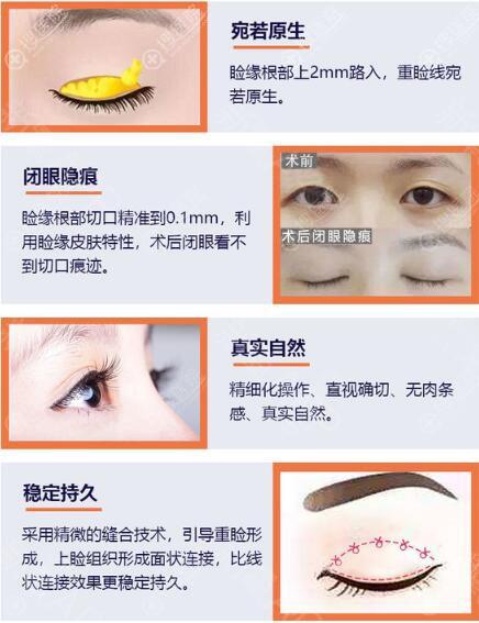 北京美莱双眼皮优势