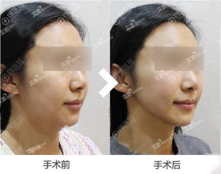 顾客在韩国艾恩体验下巴吸脂和激光提升的效果对比