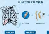 韩国普罗菲耳整形医院讲耳再造材料人工支架与自体肋软骨区别