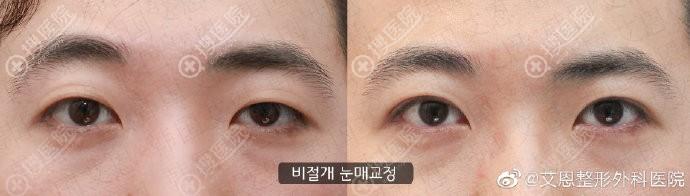 韩国艾恩双眼皮模糊修复