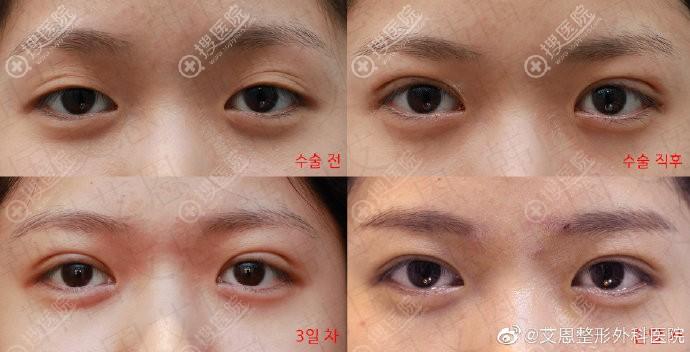 韩国艾恩多眼皮修复案例