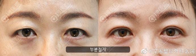 韩国艾恩眼皮松弛修复案例