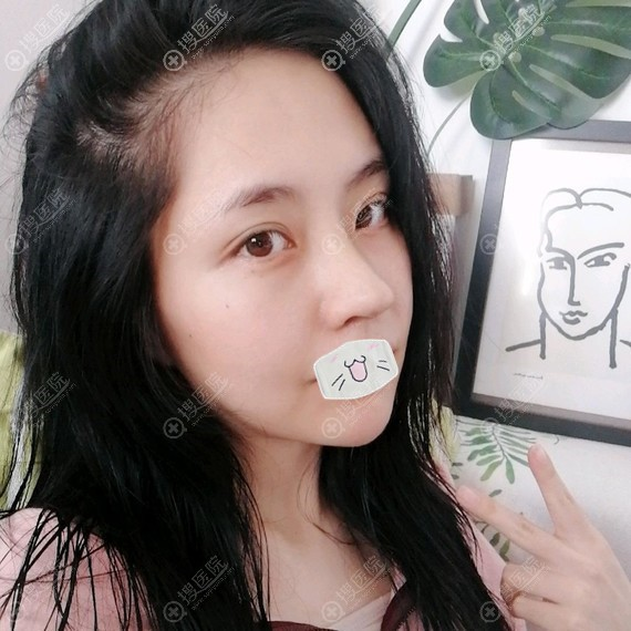 韩国普罗菲耳鼻综合隆鼻修复术后效果图