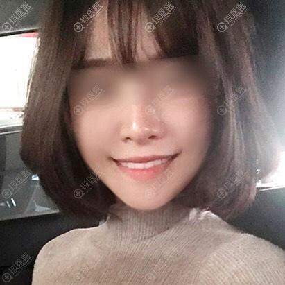 韩国菲斯莱茵颧骨缩小术后四个月案例