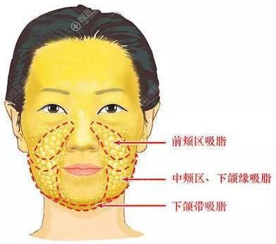 面部吸脂部位示意图