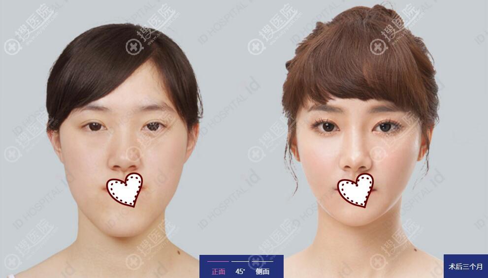 无捆绑双鄂手术案例前后效果对比图