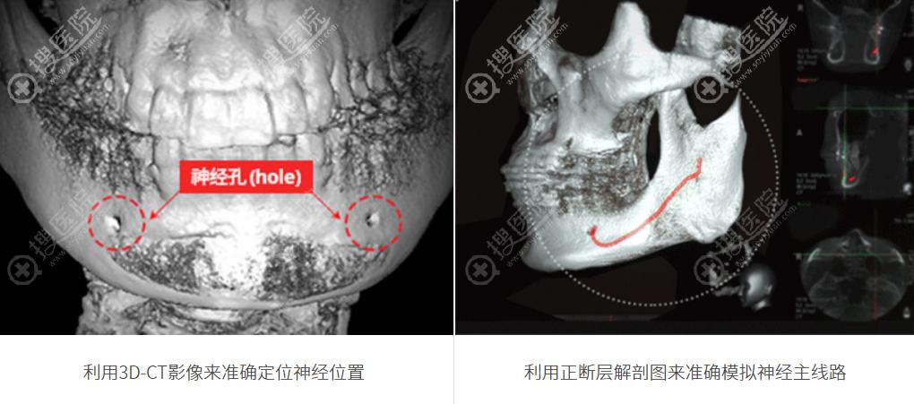 韩国ID整形医院影像设备检测神经线