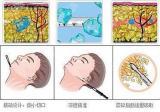 了解面部吸脂的原理后整理了一份面部吸脂攻略轻松告别肉肉脸