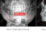 韩国ID整形医院无捆绑双鄂手术与国内双鄂整形有什么区别?