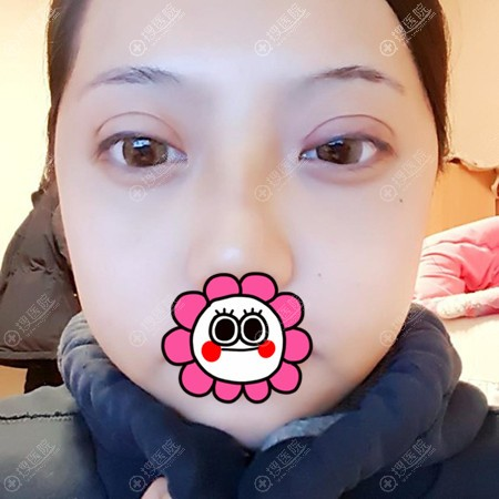 埋线双眼皮术后7天的恢复效果