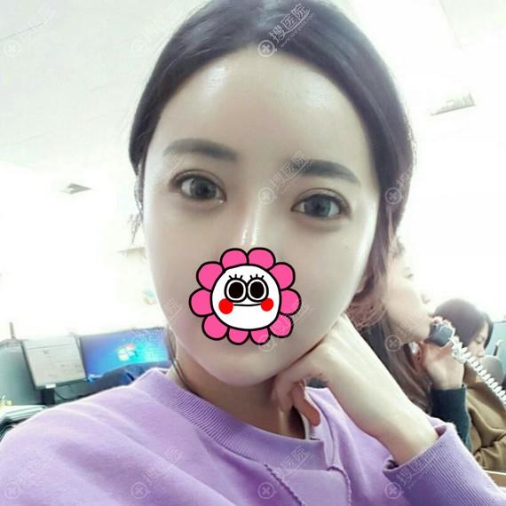 到韩国原辰做的埋线双眼皮术后恢复一个月案例