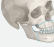 骨性凸嘴矫正之国内双鄂手术跟韩国三鄂手术的区别价格比较