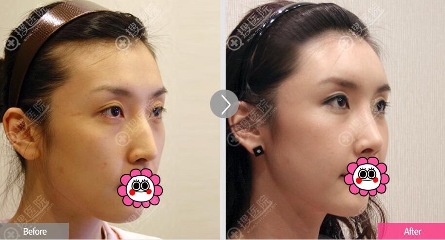 韩国菲斯莱茵驼峰鼻整形对比
