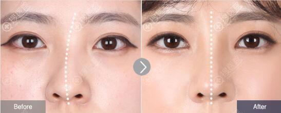 韩国菲斯莱茵歪鼻整形对比