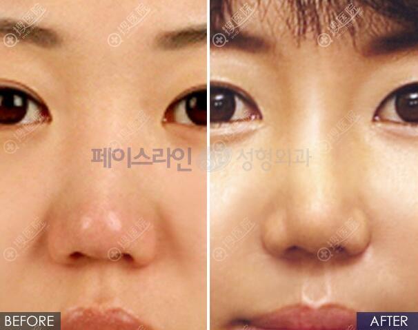 韩国菲斯莱茵福鼻整形对比